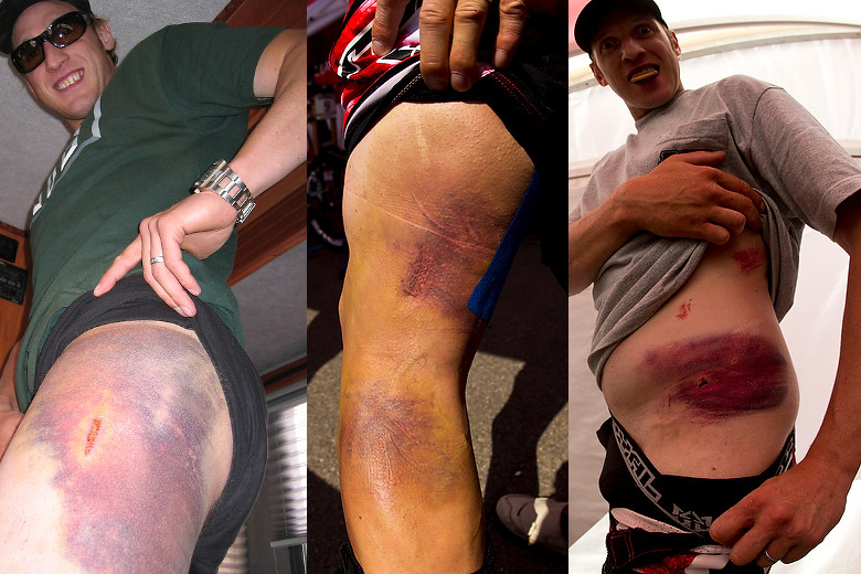 15 Lessons We've Learned from Steve Peat