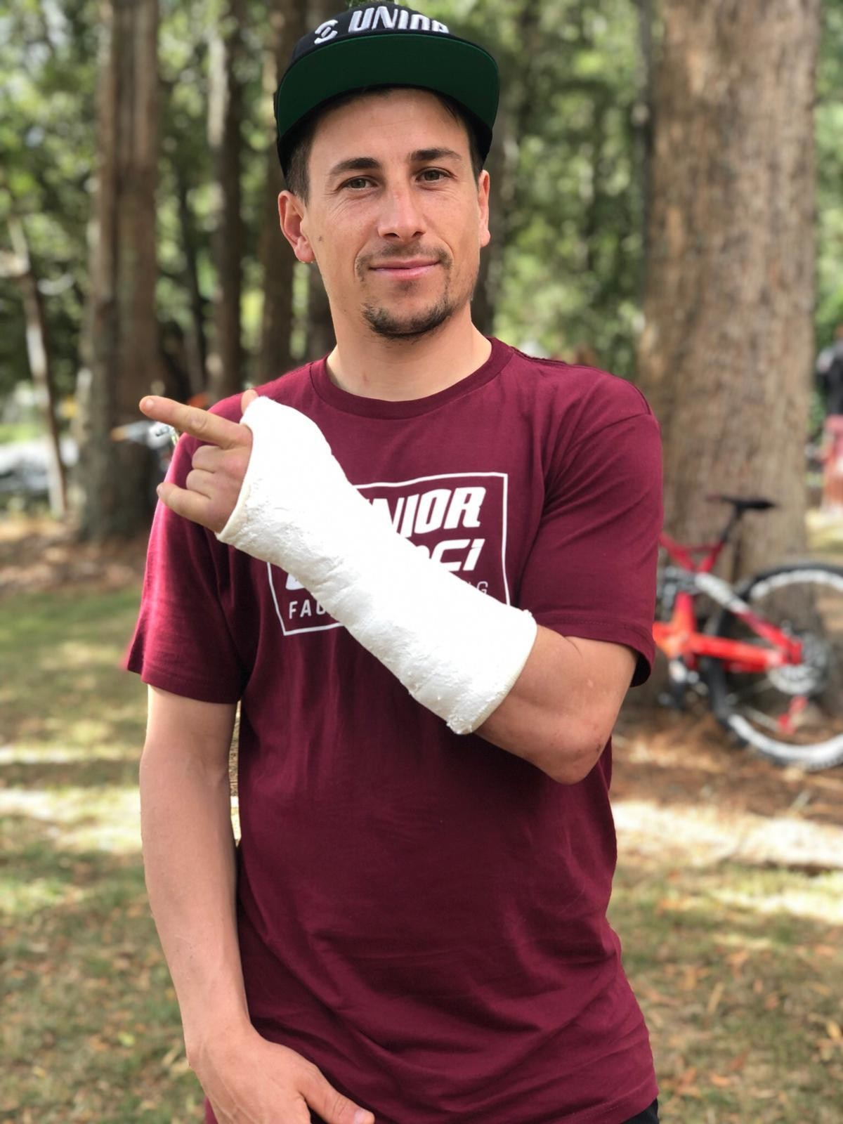 Damien Oton Injures Scaphoid, Out for First Two EWS Rounds, Maybe More