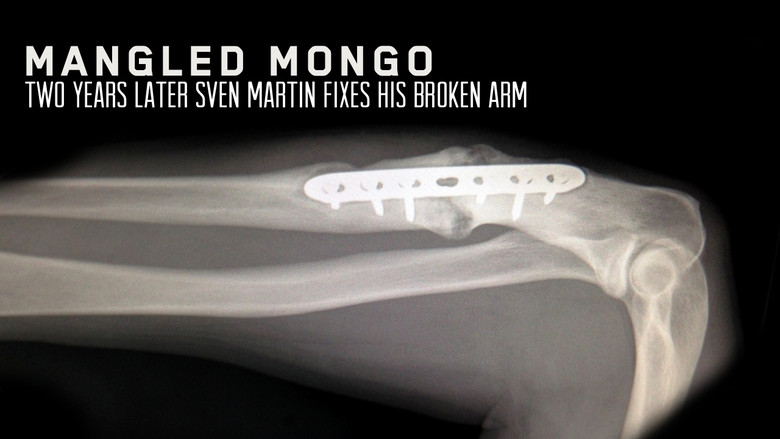 Sven's pre-op arm, showing old plate with no union and bone deposit deformities.