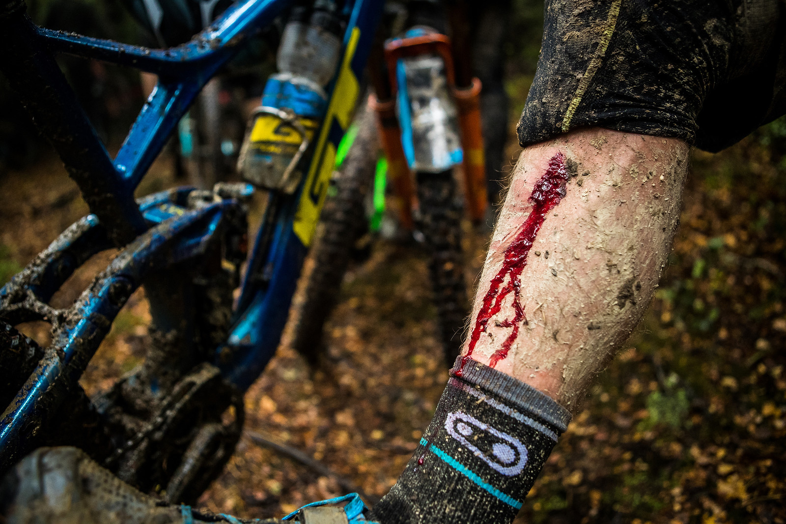 The wound at the NZ Enduro.