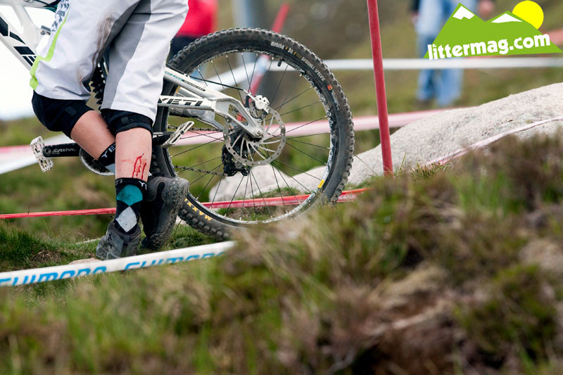 Flat pedal pain - 2009 UCI World Cup Fort William - Day 2 - Mountain Biking Pictures - Vital MTB